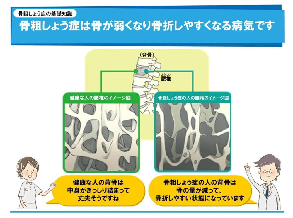 リウマチ・骨粗鬆症